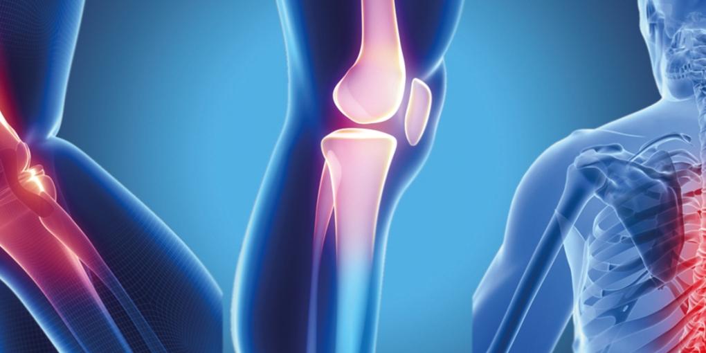 جراحة العظام